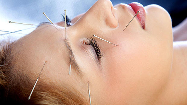 What is Acupuncture & What are the Different Ways to Improve your Health